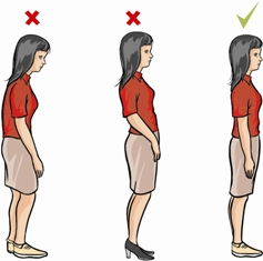 Examples of some of the most common findings we observe can be corrected by postural restoration via posture-based functional fitness...