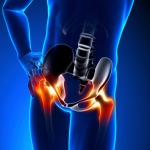 Easing hip pain on the chiropractic table