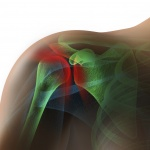 Shoulder impingement and low level laser therapy