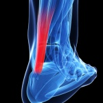 NBA star Kevin Durant's injury; a look at biomechanics and treating calf, Achilles tendon injuries