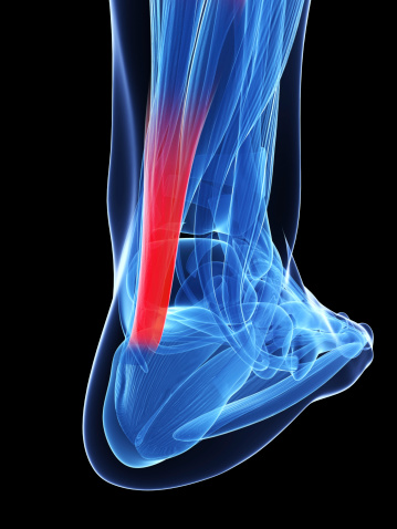Even in world-class athletes, Achilles tendon injuries can be avoided by looking at the biomechanics of the injury and...