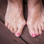 How to treat painful bunions and prevent future formation