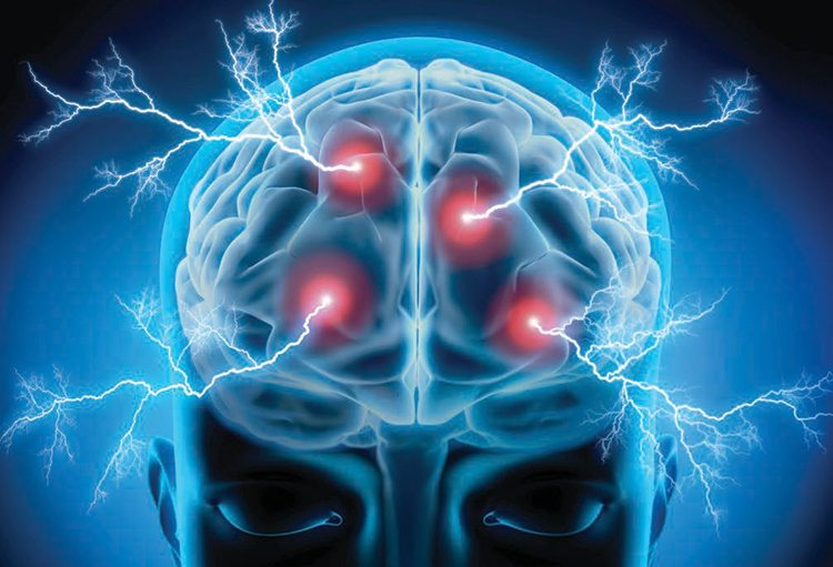 How laser therapy can help mild traumatic brain injury
