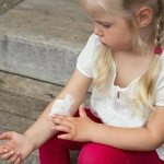 Skip the antibiotics for mild eczema in children