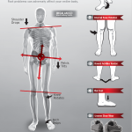 5 Red Flags of Pronation Poster