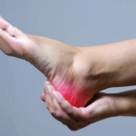 Laser treatment for plantar fasciitis