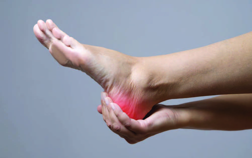 Learn the causes and cures for plantar fasciitis