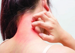 Treating dermatological problems beyond the skin