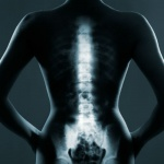 Bad habits that create spine problems