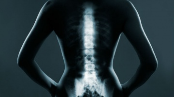 Help patients address their bad spine habits that could potentially lead to spinal issues later in life