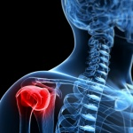 Laser therapy for rotator cuff injuries with chiropractic care