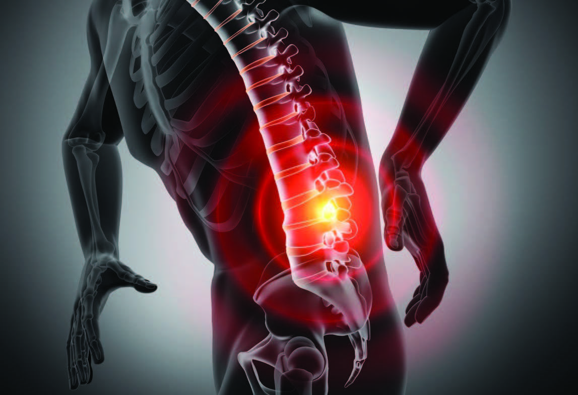 Pain management has been getting increased attention in the U.S. health-care market due to the current opioid epidemic. Laser therapy for inflammation is a non-invasive modality that can have effects on both chronic and acute pain through the process of photobiomodulation (PBM)