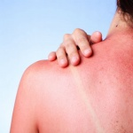 4 soothing natural sun burn remedies