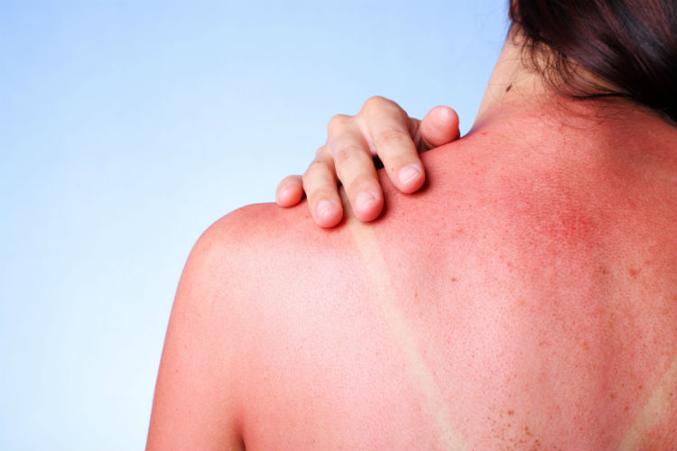 Aside from using compresses soaked in ice water, there are several other natural natural sun burn relief tricks that your patients can try.