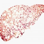 The best supplements for liver health for your patients