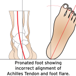 Chiropractic Economics Summer Buyers Guide: orthotics and 3D foot scanning