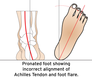 A lot of times, patients have no idea their feet can be the culprit, which is where 3D foot scanning comes in...
