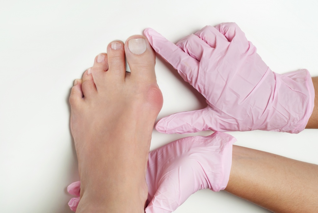 Bunion formation and pain can have a significant effect on mobility and activity levels -- all patients with bunions must be encouraged to wear...
