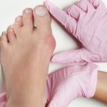 Bunion formation and orthotic support