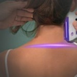 violet laser treatment