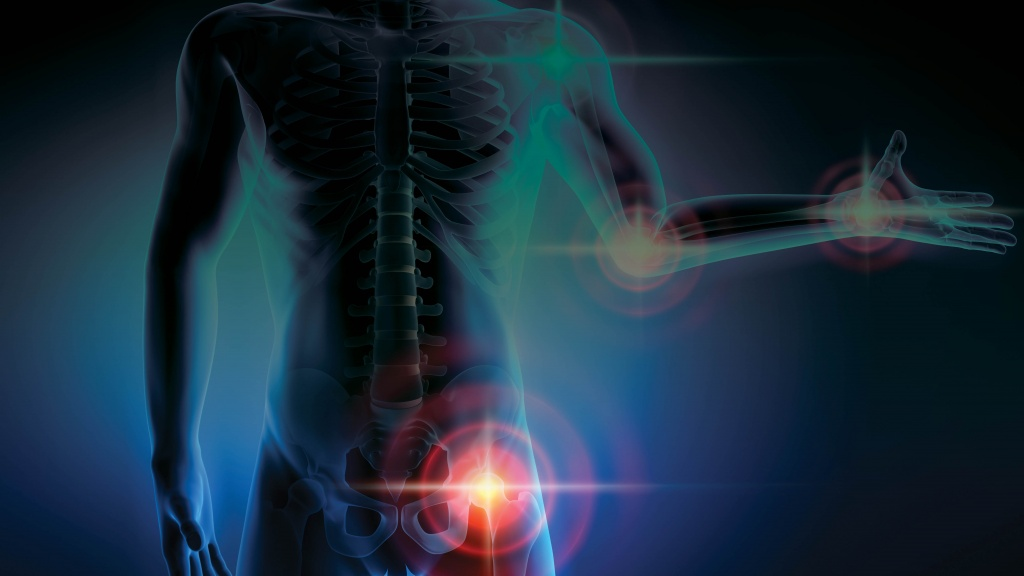 Besides inflammation, CBD impacts arthritis; learn more about CBD and how to improve joint health, and how CBD can have a major impact on...