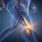 How to avoid knee surgery and prevent lower extremity injuries for patients