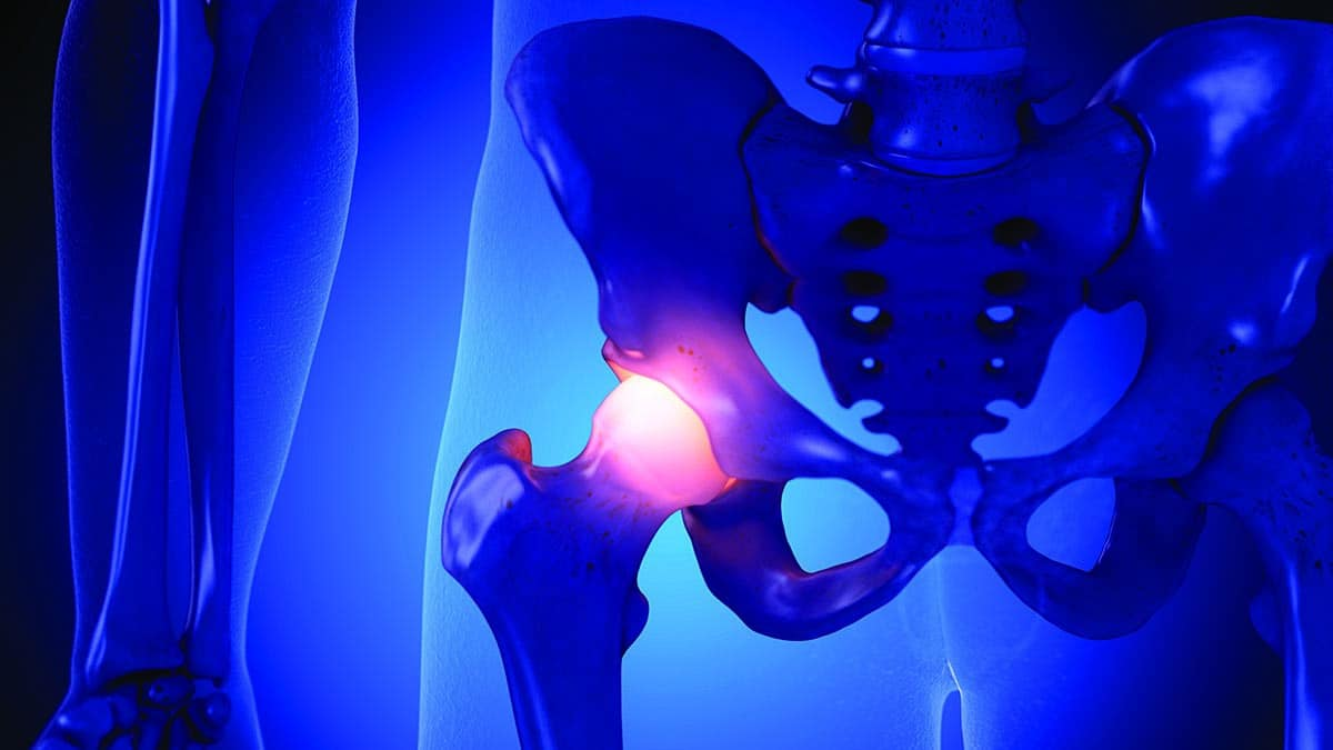 Prevent surgery or arthroscopic hip replacement
