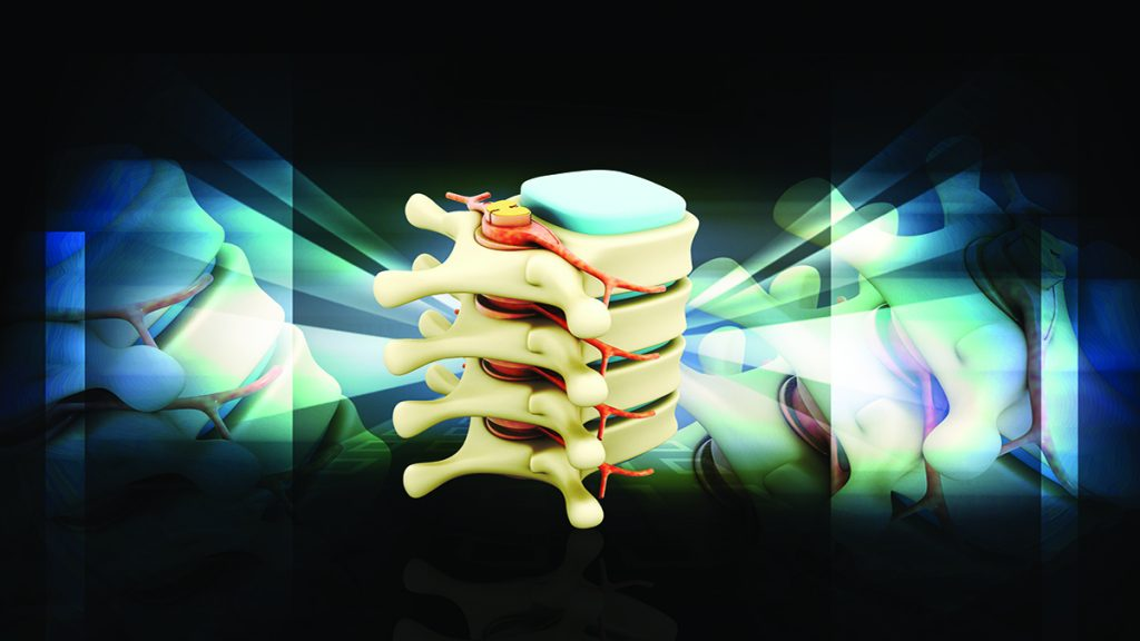 Chiropractic table driven or 'pushing' devices and are still being marketed today for the spinal decompression table...