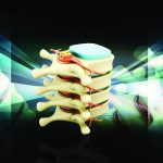 Spinal decompression table: table-driven vs. puller systems